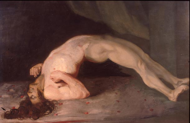 Opisthotonus in a patient suffering from tetanus - Painting by Sir Charles Bell - 1809